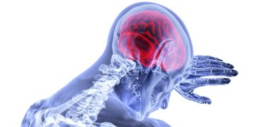 Kako poteka okrevanje po možganski kapi z učinkovito fizioterapijo?